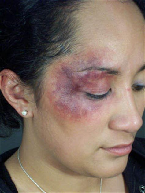 black eyes what is black eye and treatment health dictionary