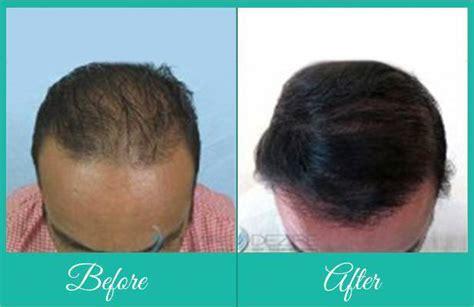 how is loop hair transplant done fue body hair transplant transplant hair from body to