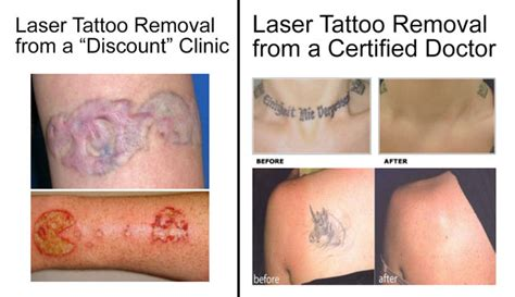 Simple Tattoo Removal | is laser tattoo removal really safe the skiny