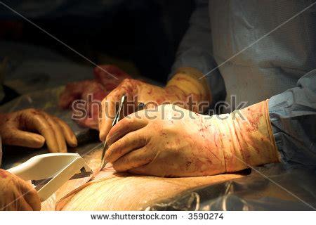 lt cesarean section c section pics