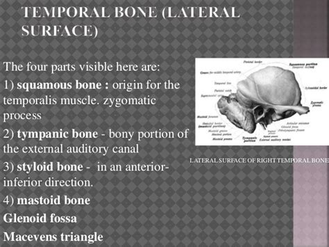 Temporal Bone Dissection Guide anatomy of temporal bone and skull base