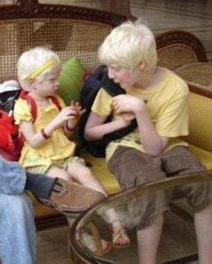 meet the family with 4 albino children including a blind