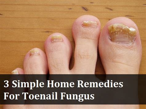 3 simple home remedies for toenail fungus 187 make your