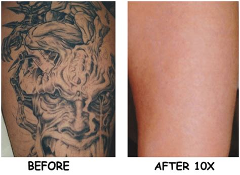 is it possible to remove tattoos laser removal is it a solution unsolicited ink
