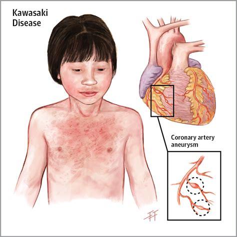 Kawasaki Disease Images by Kawasaki Disease Www Pixshark Images Galleries