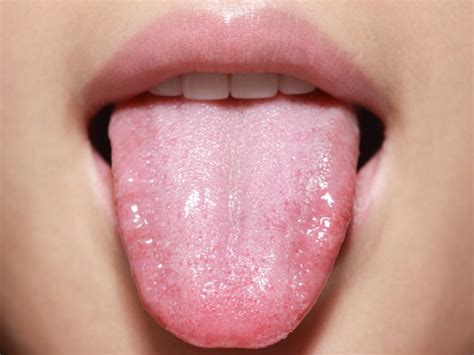 healthy tongue color healthy tongue appearance www pixshark images