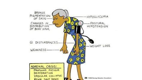 capogiri a letto cause malattia di sintomi cause e trattamento
