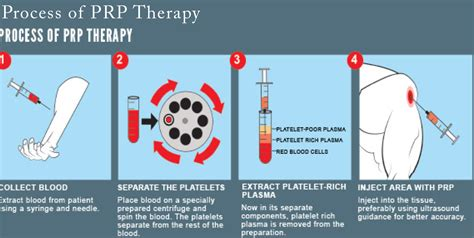 protein rich plasma platelet rich plasma therapy ancillary solutions