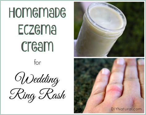 wedding ring rash remedies homemade eczema cream relief for wedding ring rash and more