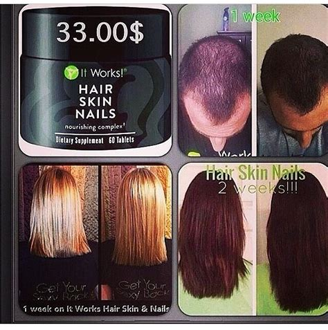 cheap haircuts calgary ne growth results after using it works hair skin nails