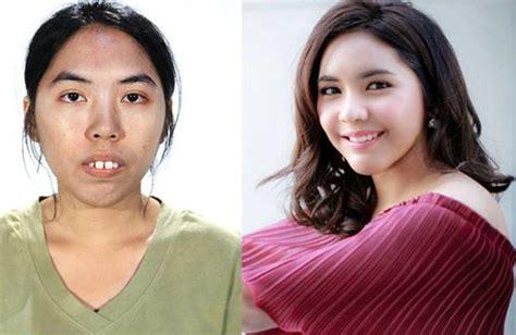 Film Thailand Jelek Jadi Cantik   gadis thailand bergigi tonggos jadi cantik dahsyat setelah