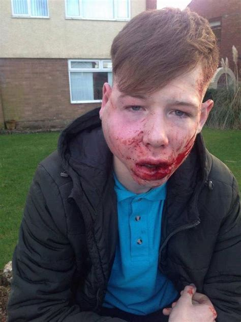 15 year old boy haircuts shocking pictures of 15 year old bullying victim s face