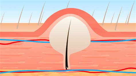how do you heal ingrown hairs on your chin treating and preventing ingrown pubic hair