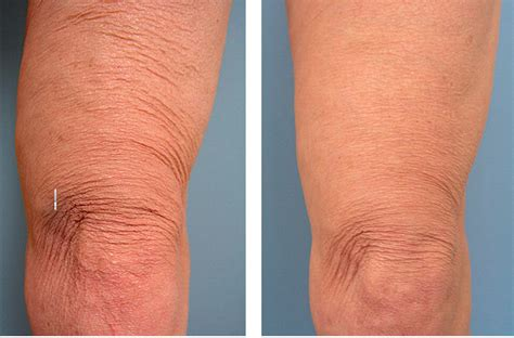 knee lift surgery before and after 10 most expensive plastic surgery procedures quick top tens