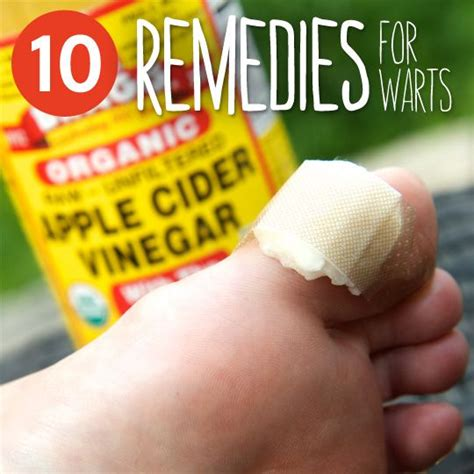 Can You Get Planters Warts On Your by 10 Common Remedies To Get Rid Of Warts Remedies