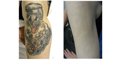 tattoo removal surrey removal in surrey effective laser removal q