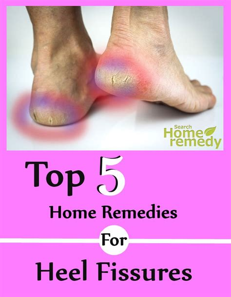 top five home remedies for heel fissures search home remedy