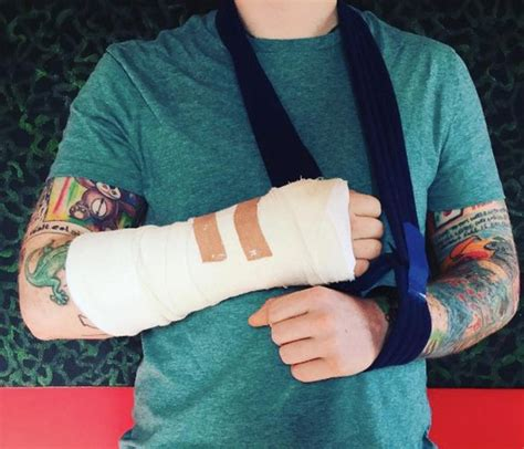 ed sheeran hand ed sheeran breaks arm after being hit by a car in london