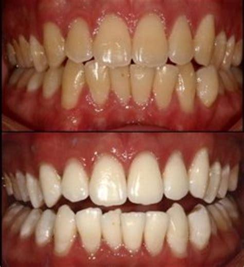 best tooth whitener the best teeth whitener
