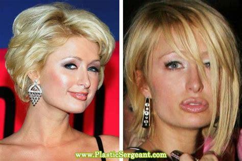 celebrity plastic surgery blog celeb surgery pics celebrity cosmetic surgery gone bad gallery ebaum s world