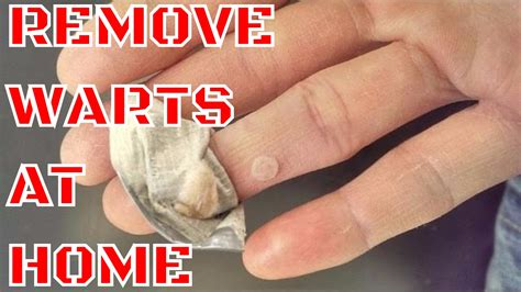 how to remove warts on dogs wart removal how to remove warts at home doovi