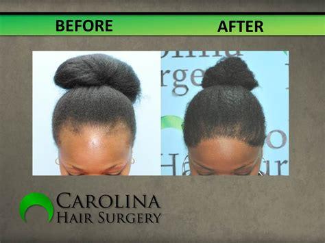 faq main hair loss hair transplant and restoration hair loss restoration in women carolina hair surgery