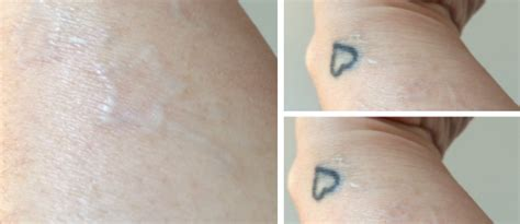 my tattoo removal experience my laser removal experience why hello