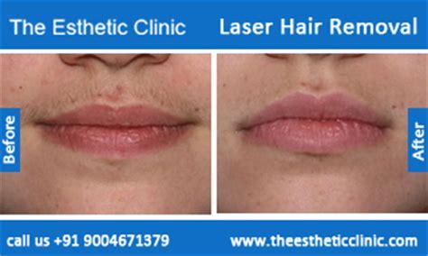 ipl hair removal clinic laser hair removal cost with laser hair removal best laser hair removal clinic mumbai