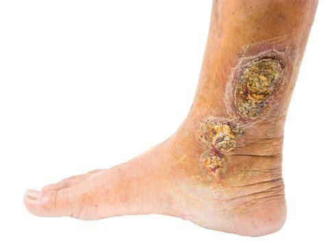skin ulcer skin ulcers triangle vein clinic
