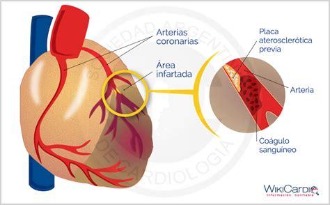 l infarto del miocardio image gallery miocardio