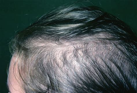 womans hair thinning on sides pictures of what your hair and scalp say about your health