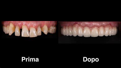 protesi    su impianti sos turismo dentale
