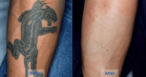 tattoo removal cost killeen tx laser tattoo removal guilford 2 the langdon center
