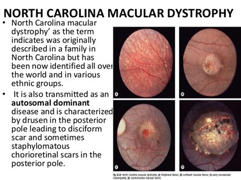 pattern dystrophy vs macular degeneration macular dystrophies