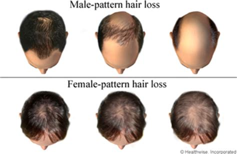 what percentage of men lose hair does low testosterone cause hair loss in men and women