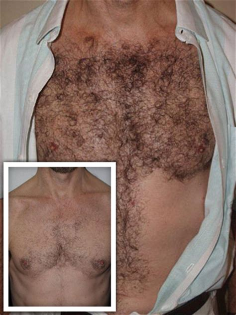 thick extensive pubic hair body hair transplant miami fl