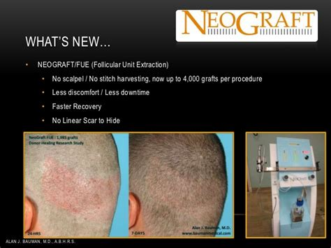 dr bauman offers no linear scar hair transplants with hair loss management ahlc dr alan j bauman 05 2012