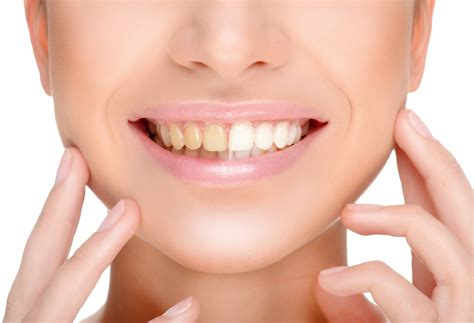 Smile White teeth whitening a pearly white smile this