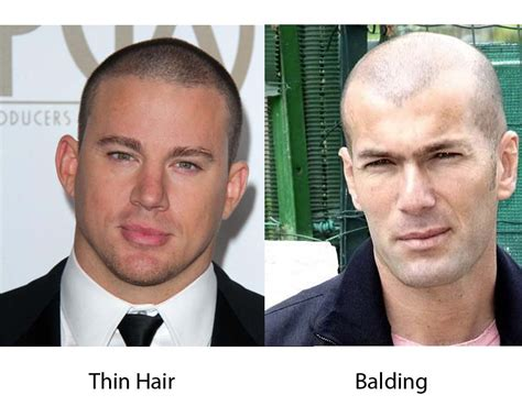 real people with fine balding hair thin hair vs balding ilookwar com