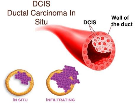 latest dcis breast cancer news and research dcis mystory mammogram images of breast dcis