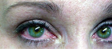 occhio secco una delle patologie oculari pi 249 diffuse e