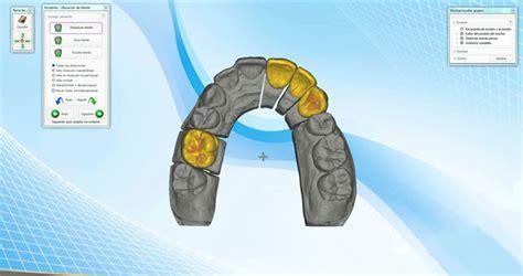 imagenes de un web cam aplicaci 243 n del esc 225 ner e impresoras 3d a la odontolog 237 a