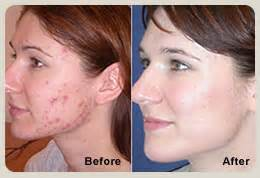 light therapy before and after blue light therapy acne treatment dermatologist