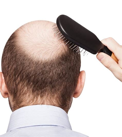 dht and hair what is dht hair loss and how to treat it