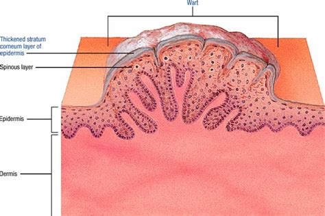 wart cross section warts atlas of pathophysiology 2 edition