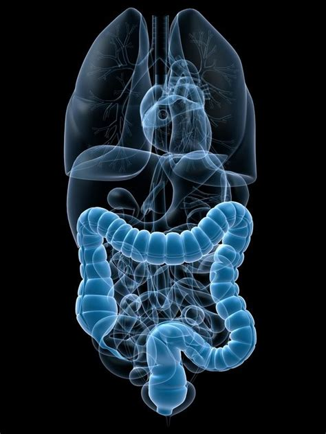 signs symptoms and history that indicate a perforated bowel