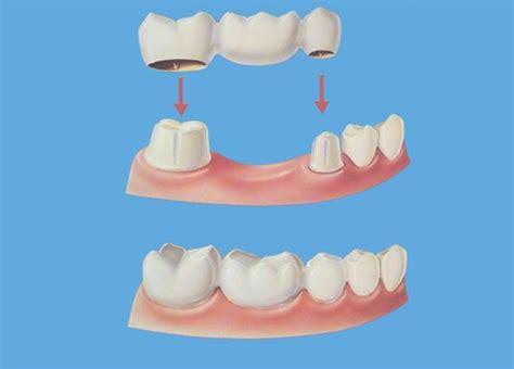 protesi fissa e mobile leonardo dental centerleonardo