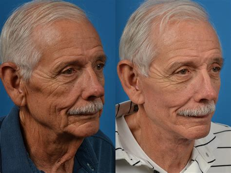 male facelift photos melbourne fl patient 53697