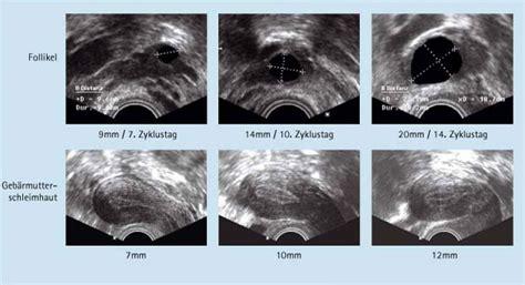 ab wann 3d ultraschall behandlung kinderwunschzentrum am klinikum kassel
