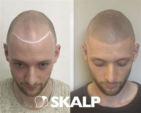 hairline tattoo 25 best ideas about scalp micropigmentation on
